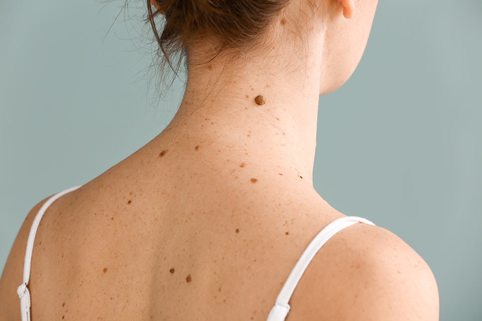 Western-District-Skin-Cancer-Service-moles-and-freckles-on-skin